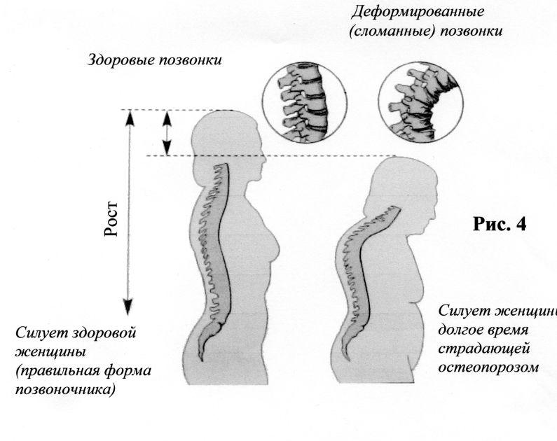 Чем вылечить дерматит у грудничка